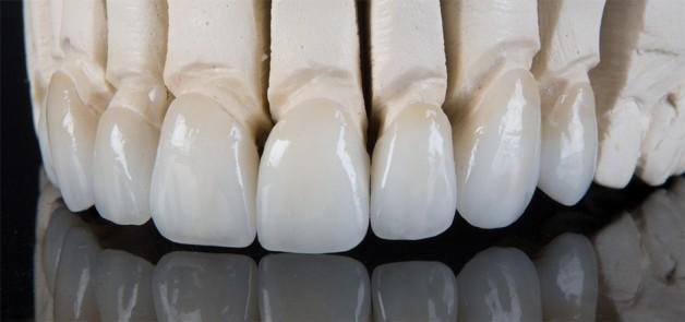 Zirkonyum Destekli Porselen Kron Uygulaması