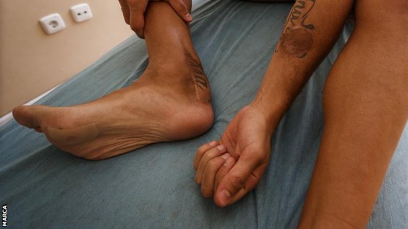 Resultado de imagen de lesion cazorla