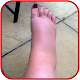 SWOLLEN FEET HOME REMEDIES Download for PC Windows 10/8/7