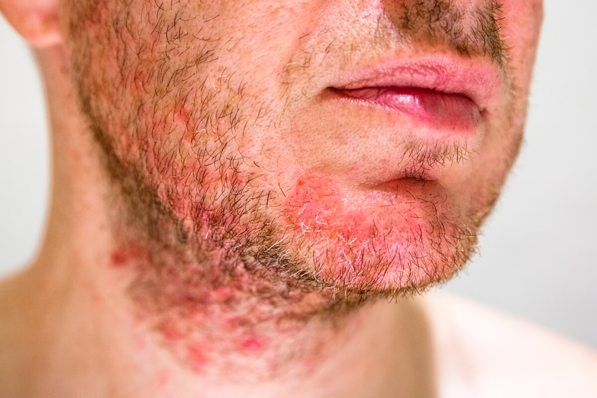 Dermatita seboreica - fata - barba - ce este