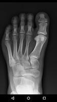 Screenshot of X-Ray Scanner Prank