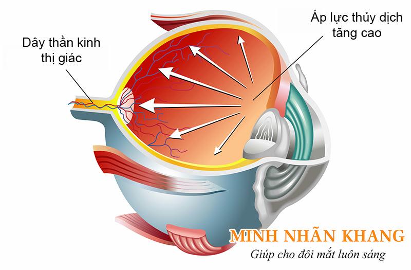 Tăng nhãn áp (glocom) - biến chứng có thể gặp sau mổ đục thủy tinh thể