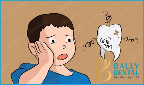 Cách điều trị bệnh viêm tủy răng ở trẻ em hiệu quả 100%