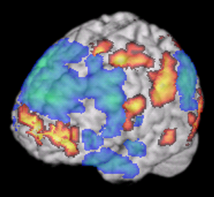 Brain-only-fMRI-journal.pone.0001679.g003.png