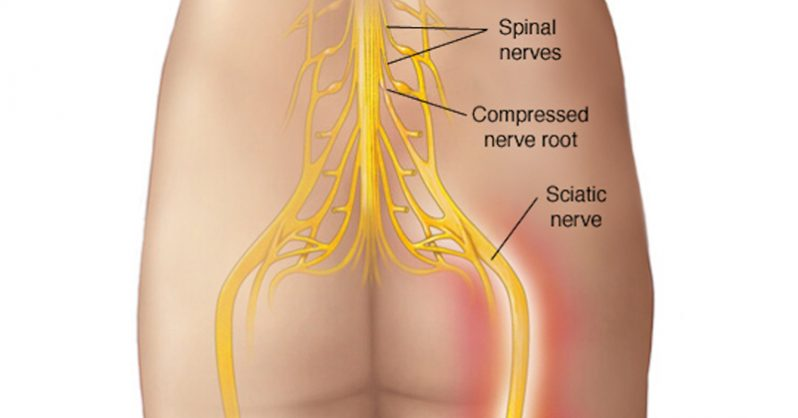 Completely Natural Solutions to Relieve Sciatica