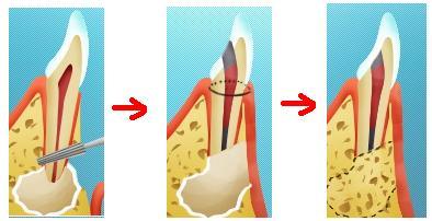 Как удаляют часть корня и кисту