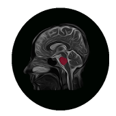 Interactive Brain Anatomy -MRI