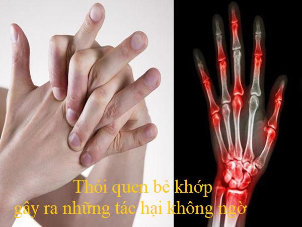 các bệnh về xương khớp ở người trẻ