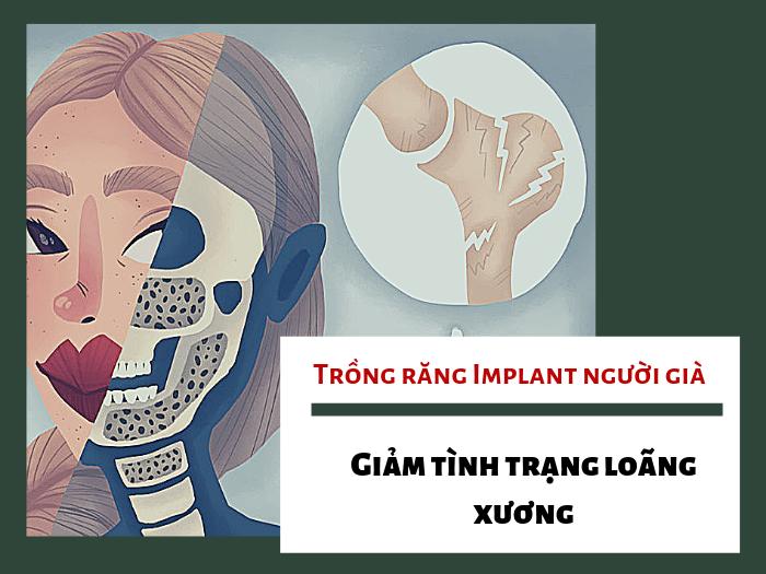 4 lợi ích tuyệt vời khi lựa chọn trồng răng Implant cho người già  - Ảnh 1