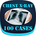 Interpret Chest X-Ray With 100 Cases icon