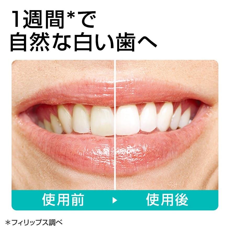 フィリップス白い歯