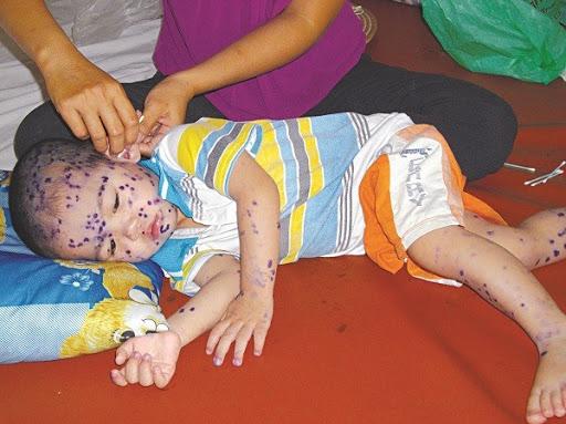 Bệnh thủy đậu ở trẻ em nên kiêng gì, bệnh có lây không