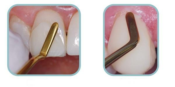 Image result for đắp răng khểnh composite