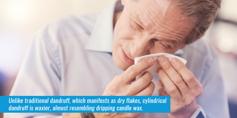 Unlike traditional dandruff, which manifests as dry flakes, cylindrical dandruff is waxier, almost resembling dripping candle wax.