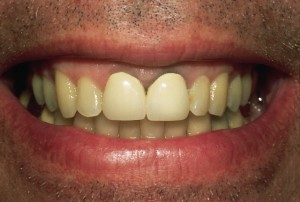 Unnatural Looking Crowns and a Black Line at the Gum Line