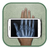 Mobile X-ray Scanner