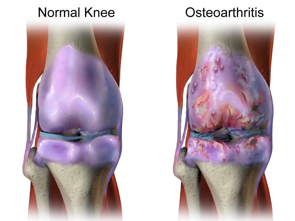 File:Osteoarthritis.png - Wikimedia Commons