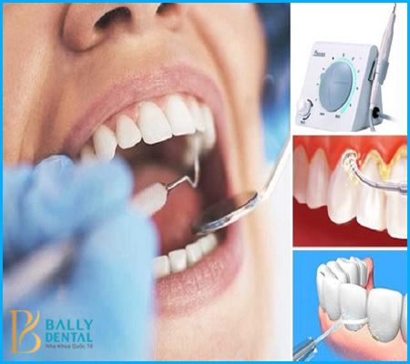 Quy trình lấy cao răng bằng máy siêu âm tiêu chuẩn Quốc tế
