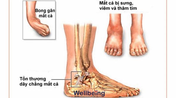 chan-thuong-mat-ca-wellbeing