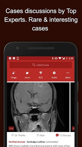 玩免費醫療APP|下載DAILY ROUNDS Aipgmee Cases ECG app不用錢|硬是要APP