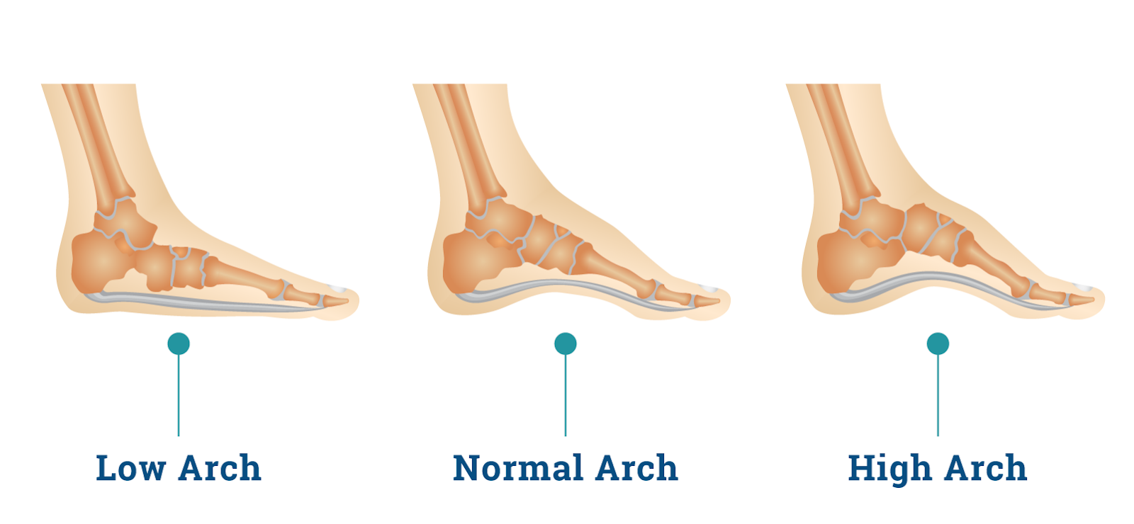 Image result for foot arch types