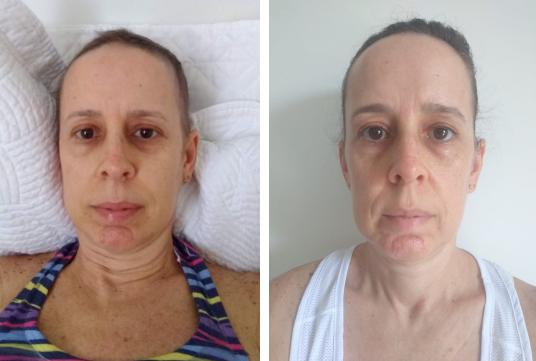 coloração pessoal em pacientes oncológicos: durante e após o tratamento