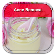 Tips To Remove Acne