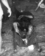 Photo: BÊN THẮNG CUỘC - HUY ĐỨC                                  A Vietnamese citizen who did not get to vote-he was severely injured when a Viet Cong bomb exploded in the polling place at Phu Lam hamlet. http://www.vietnam.ttu.edu/virtualarchive/items.php?item=VA004340 Một công dân Việt Nam đã bị thương nặng khi một quả bom Việt Cộng phát nổ tại địa điểm bỏ phiếu tại thôn Phú Lâm.