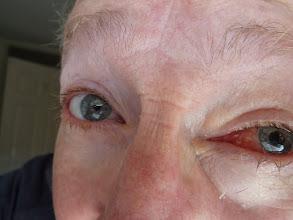 Photo: Left eye repaired
