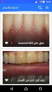 العناية بالفم و الأسنان - náhled