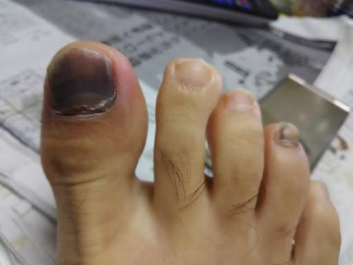 右足親指の爪