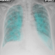 Chest X-Ray And Pathology (app)
