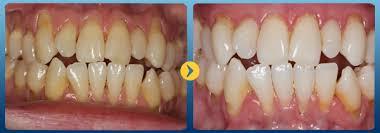 Cạo vôi răng mất bao lâu thời gian? - Nha khoa Bally 1