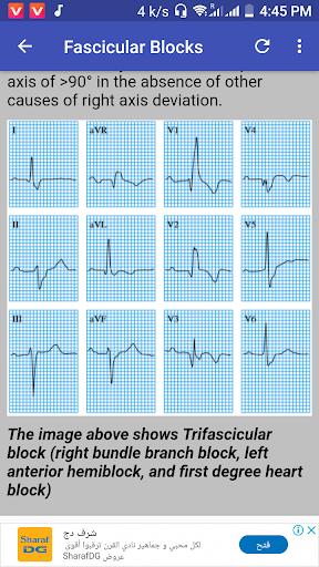 clinical ecg guide. screenshot 3