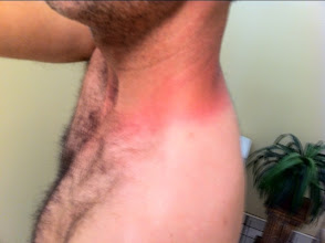Photo: Oops. I may have overdone it a bit with no sunscreen.