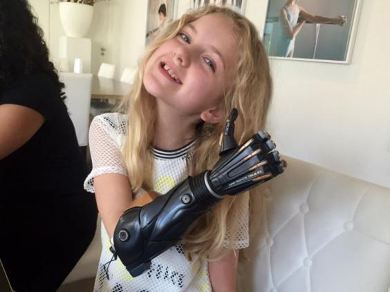 Скорее завидуют, чем сожалеют, Локки говорит, что люди восхищаются ее трехмерной печатной бионической рукой, основанной на видеоигре Deus Ex