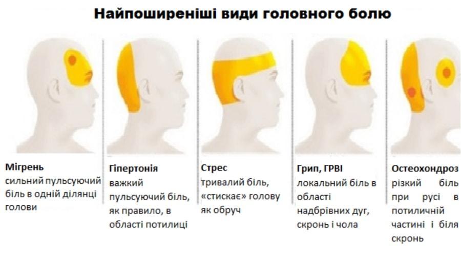види головних болів