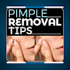 Proven Pimple Removal Tips