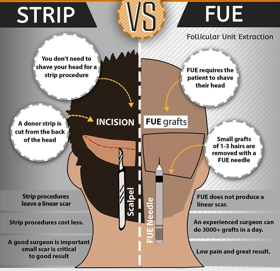 Best Hair Restoration Method: FUE vs. FUT