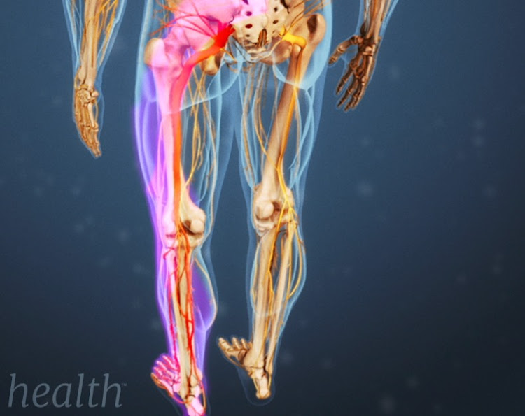 Pain in the leg may result from never damage.