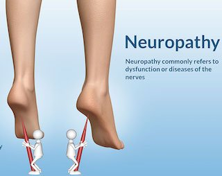 people with peripheral neuropathy do not feel pain in their feet should not wear compression socks