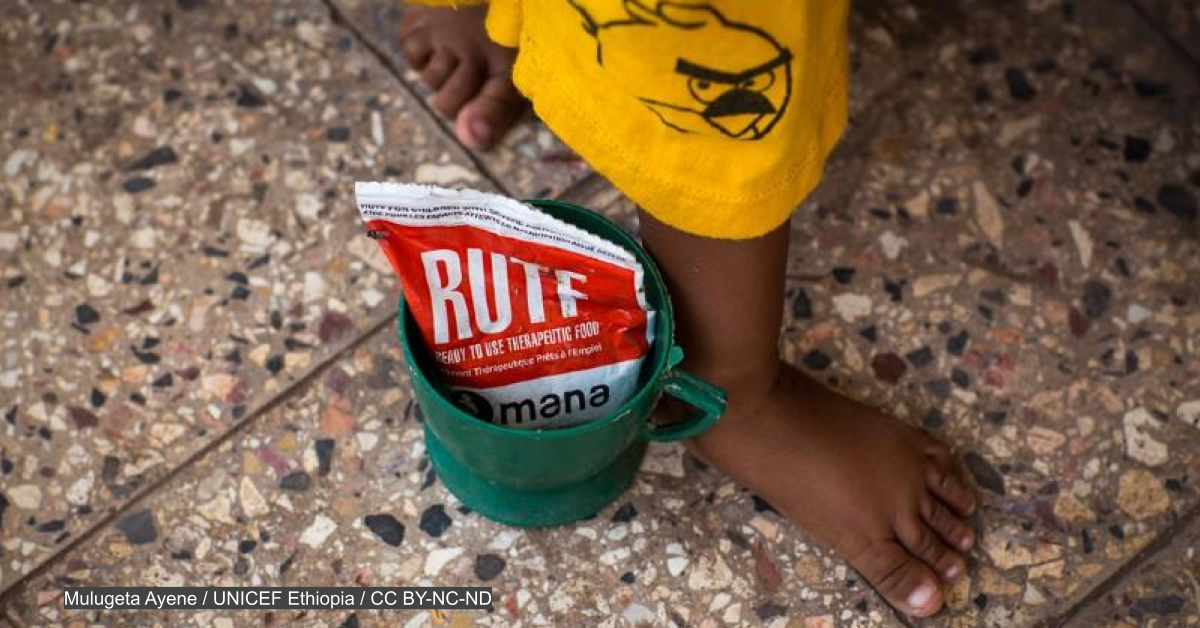 Despite pressure, WHO review keeps status quo malnutrition treatment