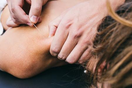 Myofasciale Therapie - Dry needling