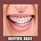 Download Beautiful Brace For PC Windows and Mac
