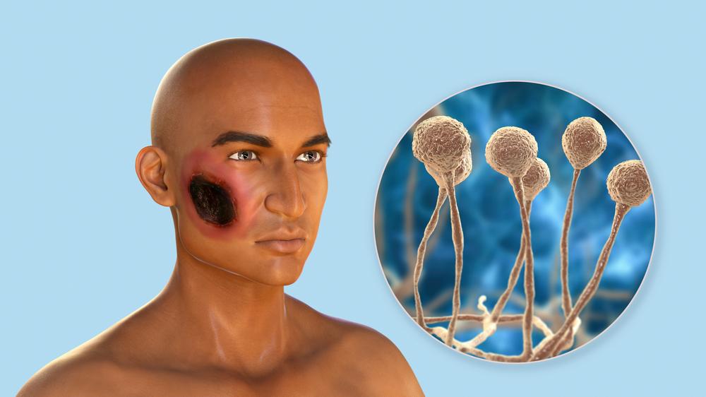 Necrose nos seios da face é um dos primeiros sintomas relatados por pacientes acometidos por mucormicose. (Fonte: Kateryna Kon/Shutterstock)