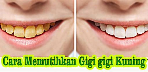 Cara Memutihkan Gigi Kuning Apps On Google Play