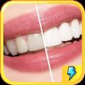 Teeth Whitening Secret Tips icon