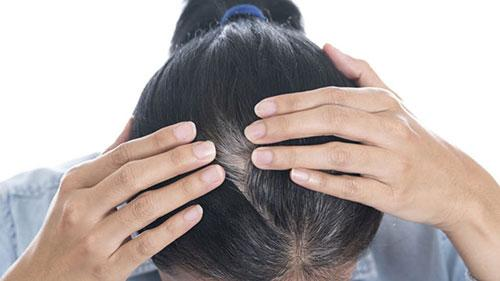 Description: Kết quả hình ảnh cho zhair chữa tóc bạc