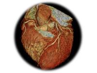 Специализированное кардиологическое обследование