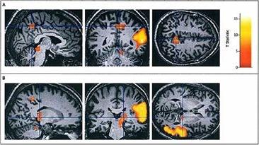 cerebro-viaje-astral